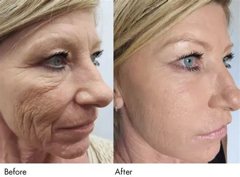 Look Younger Without Plastic Surgery by How Can A 40 Year Look Younger Without Plastic