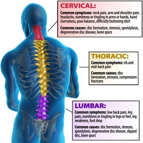diagram of back post laminectomy arizona specialists