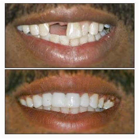temporary tooth repair or replace kit diy makes 25 30