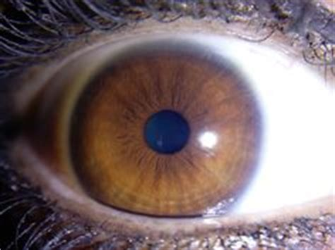 iris pattern types 1000 images about iris patterns iridology on pinterest