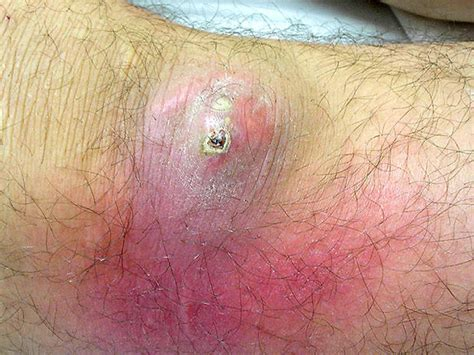 mrsa c section image gallery mrsa lesions