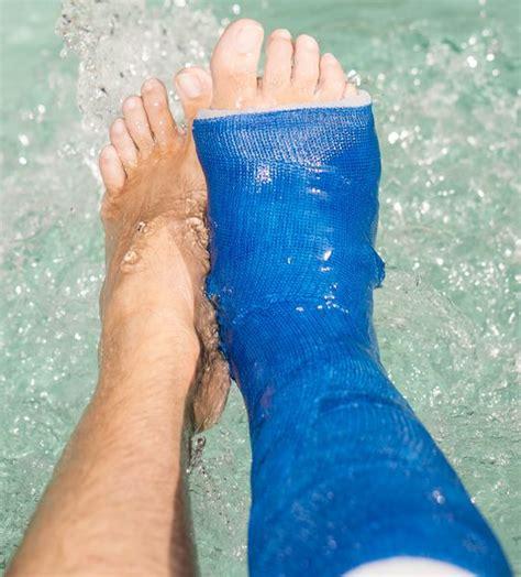 Waterproof Shower Boot by Waterproof Cast Delta Leg Padding Kit