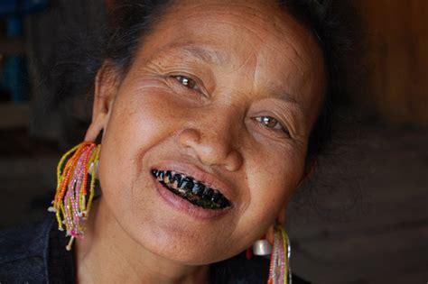 Black Teeth | ohaguro and yaeba japanese cosmetic dentistry