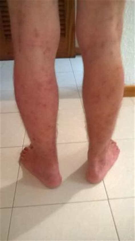 Post C Section Swelling In Legs by Swollen Bite On Leg Pictures To Pin On Pinsdaddy