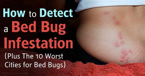 how to detect bed bugs bed bug infestations soaring in the us