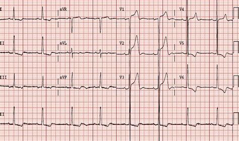lvh pattern left ventricular hypertrophy