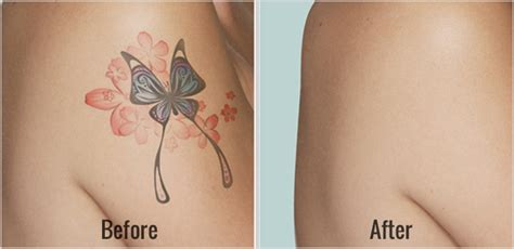 tattoo removal from home home removal methods of removal