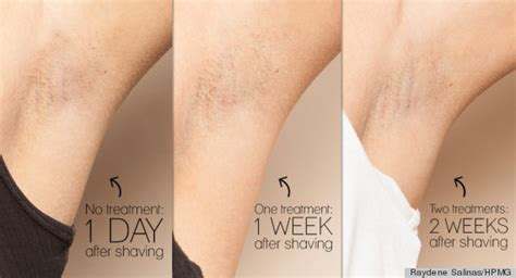 laser hair removal can benefit dark skinned people spa cielo why laser hair removal just might be worth every penny