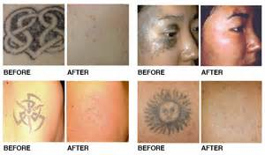 laser tattoo removal results northwest aesthetics