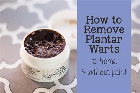 Home Remedy Planters Wart by How To Remove A Plantar Wart Home Remedy
