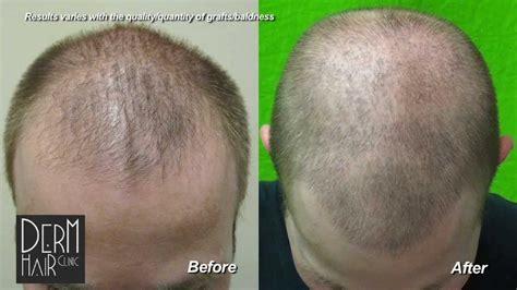 fue haircuts haircut after fut hair transplant om hair