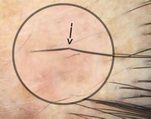 trichoscopy  hair loss neograft hair transplantation    alexandria va