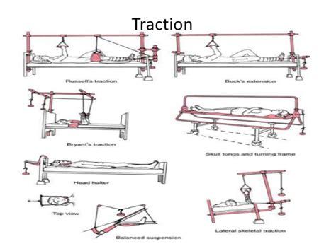 types of bucks traction