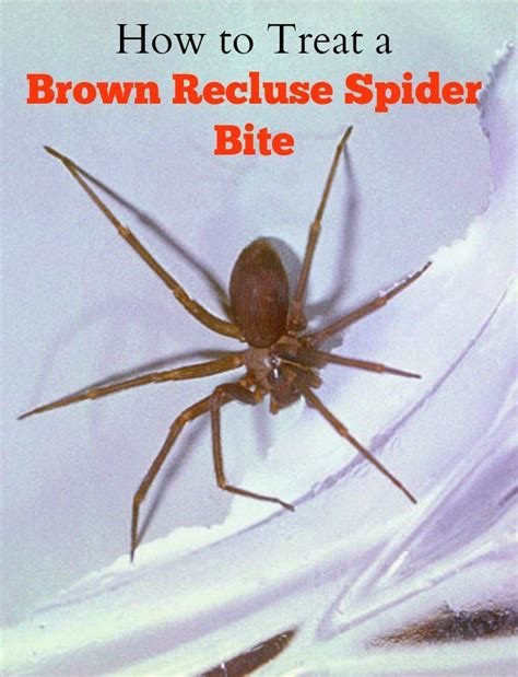 how to a that bites how to treat a brown recluse spider bite isavea2z