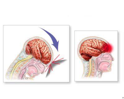 ode to the brain positiveneuro fisioterapia valencia 187 191 conmoci 211 n cerebral o lesi 211 n cervical