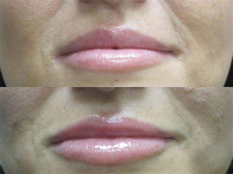 before and after plastic surgery photos lip augmentation