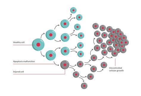 brain tumor diagram what is a brain tumour the brain tumour charity