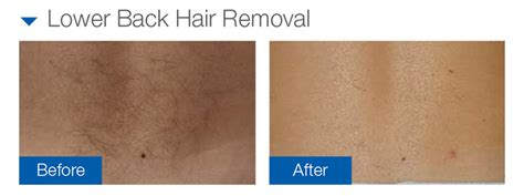 Laser Hair Removal Different Types by Clinical Magma Platform Fast Hair Removal