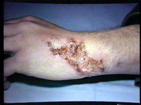 bed soars bed sore dermatology image