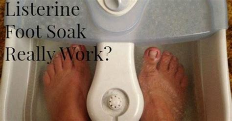 Does Foot Detox Soak Really Work by Does The Listerine And Apple Cider Vinegar Foot Soak