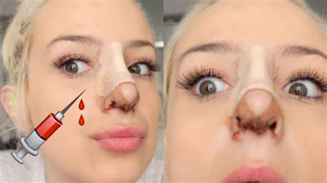 Did Get A Nose 2 by What To Do Before And After Nose Health 2 0