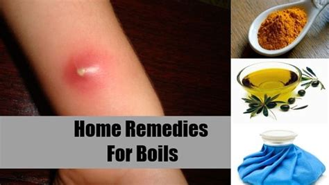 home remedies for boils and cysts on back or leg