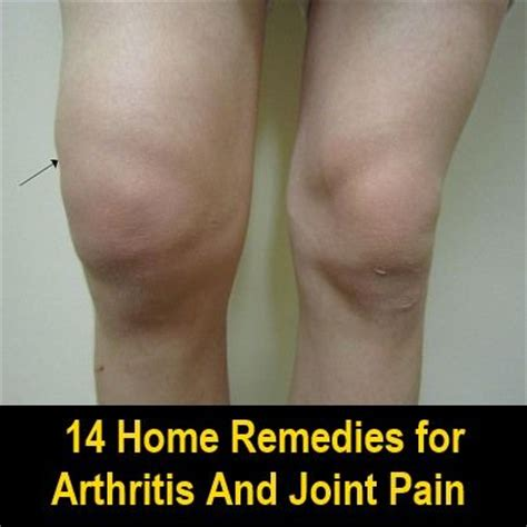 17 best ideas about knee relief on knee