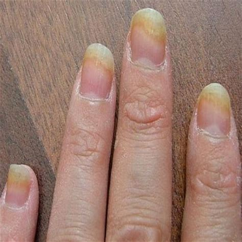 Nail Problems by Top Four Cure For Nail Fungus How To Cure Nail