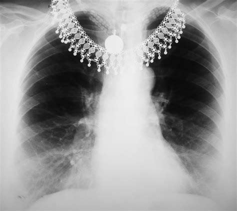 google images x rays emergency chest x ray google search interesting xrays