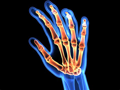 ra what is rheumatoid arthritis and how it will affect