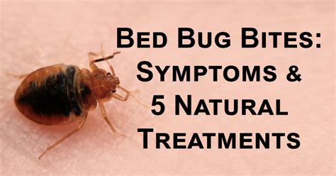 bed bug bites symptoms  natural treatments davidwolfecom