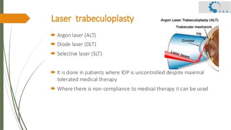 diode laser for glaucoma diode laser trabeculoplasty 28 images selective laser trabeculoplasty for glaucoma glaucoma