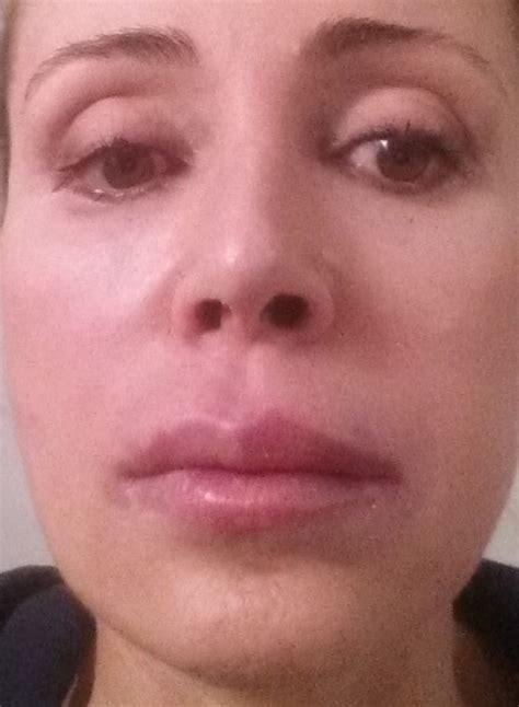 gonfiore interno bocca i fillers faceboost