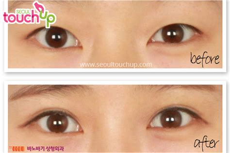 double eyelid double eyelids www pixshark com images galleries with