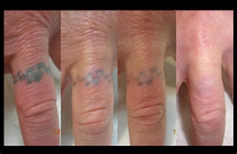 100 finger tattoo removal reset 100 removal programs in sacramento tatt away