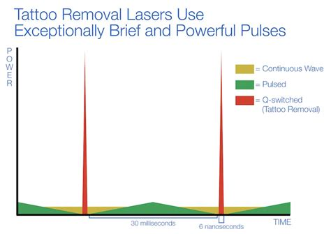 q switched lasers for tattoo removal about q switch
