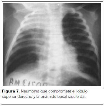 examen radiográfico del tórax en las neumonías de probable