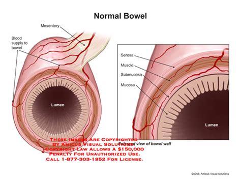 intestine cross section amicus illustration of amicus anatomy bowel intestine