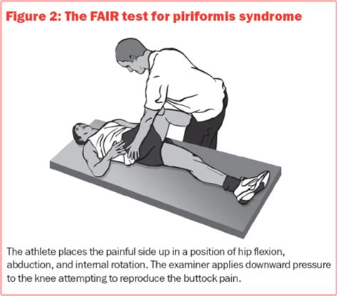 test piriforme piriformis the causes diagnosis and treatment