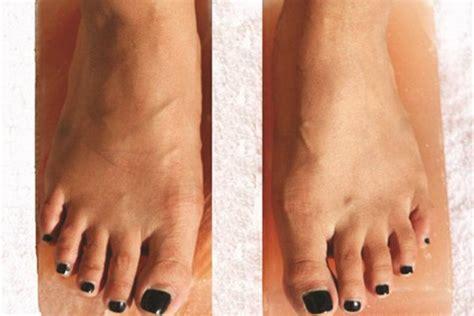 Detoxing From Fingernails by Detox Blocks Health Nails Magazine