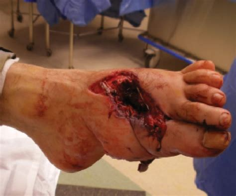 M4 Burn Tip treating gunshot wounds in the lower extremity podiatry