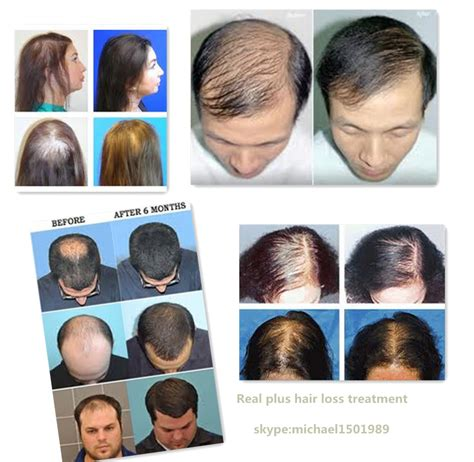 hair stylist gor hair loss in nj male pattern baldness treatment how to stop male pattern