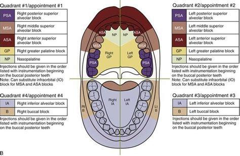 sextant of teeth figure 11 2 exles of nonsurgical periodontal therapy