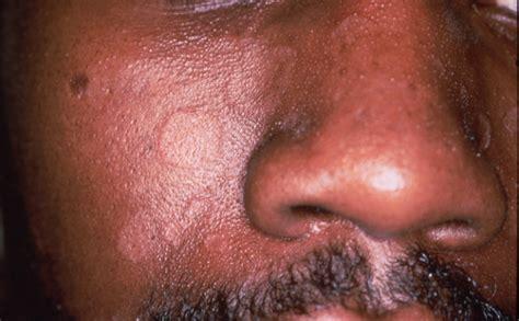 seborrhea shoo seborrheic dermatitis scalp american seborrheic dermatitis skin problems