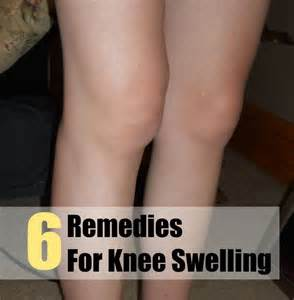 home remedies for water on the knee 25 best ideas about knee swelling on knee