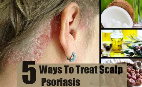 5 effective ways for scalp psoriasis treatments find