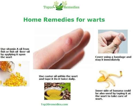 home treatments for warts top 20 home remedies