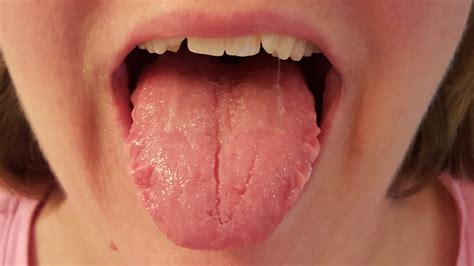 Swollen Red Bumps On Side Of Tounge | kristin s journey with hashimoto s hypothyroidism the