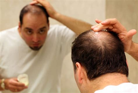 what percentage of men lose hair men s hair loss treatments and solutions with pictures
