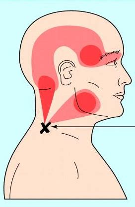 different types of headaches. what headache do i get?